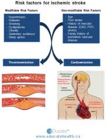 hyperthyroid and stroke risk picture 3