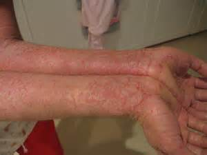 what can i fo for itchy skin after picture 10