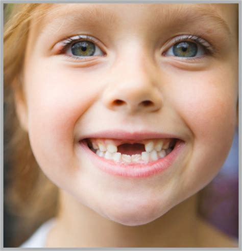 childrens teeth picture 3