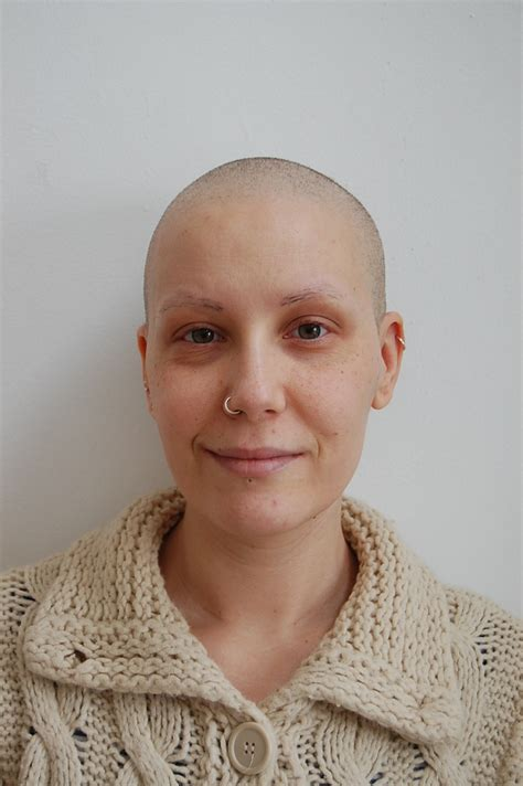 cancer hair picture 11