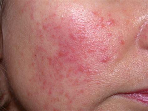 acne roseca phymatous picture 5