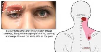 liver failure signs symptoms picture 6