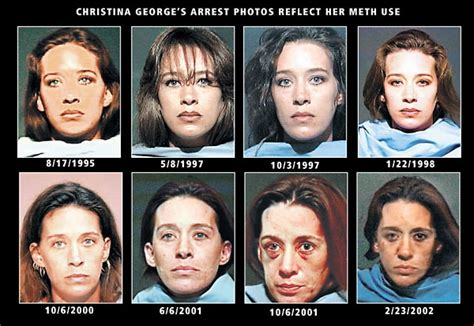 meth and drugs physical aging picture 3