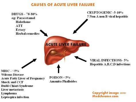 causes of liver failure picture 1