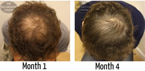 hair loss 4 months after pregnancy picture 1