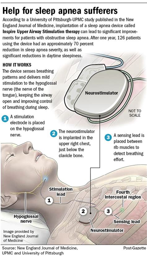 newest devices for sleep apnea besides cpap picture 10