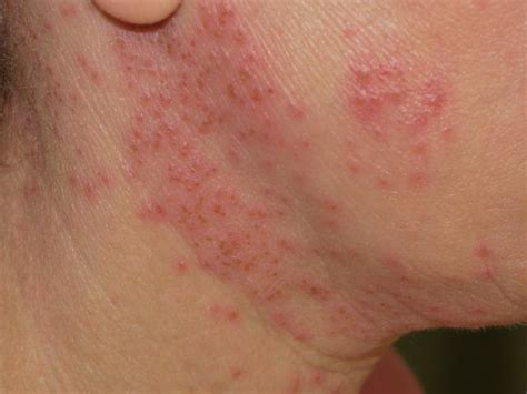 will herpes spread during picture 15