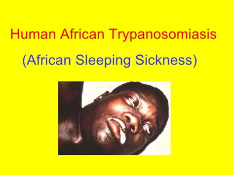 african sleeping illness picture 2