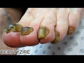 black walnut and toe nail fungus picture 2
