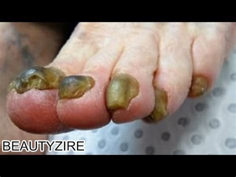 cure for yellow toe nail fungus picture 4