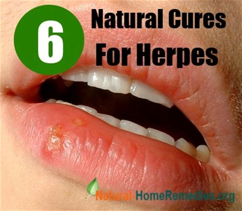 can natural pills kill herpes virus picture 1