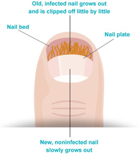 does nail fungus affect overal health picture 10