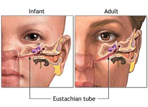 yeast infection of inner ear picture 10
