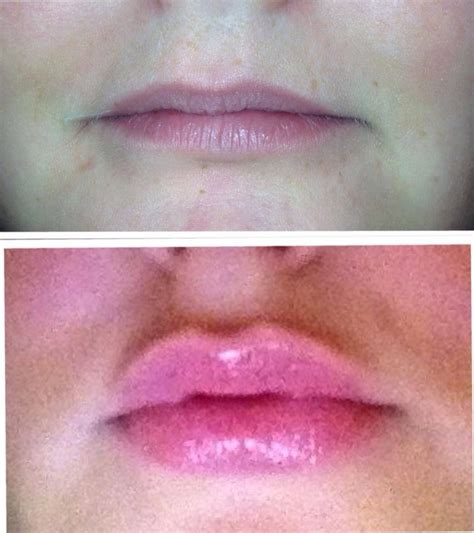 can diabetics use lip voltage? picture 9