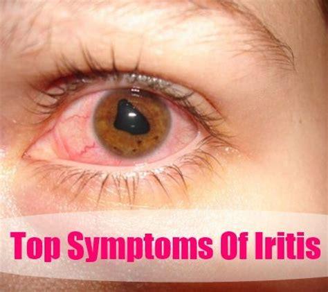 iritis and herpes symplex virus picture 2