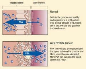 Prostate infection and psa level picture 2