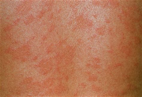 skin rashes on babies september 2015 picture 6