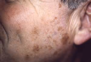 liver spots/age spots picture 6