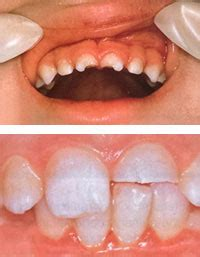chipped baby teeth picture 11