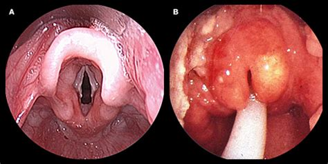 cervical bacterial infection picture 5