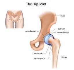 hip joint problems picture 9