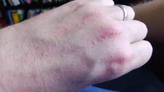 show me pictures of skin rashes picture 2