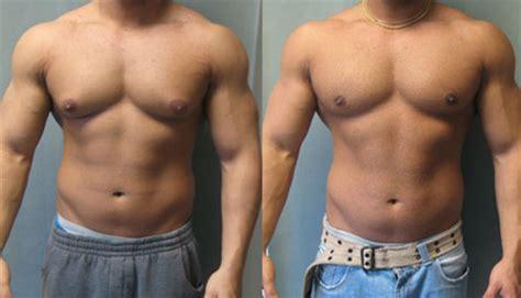 ftm testosterone lump picture 3
