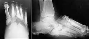 charcot-marie joint picture 5