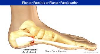 plantar picture 14