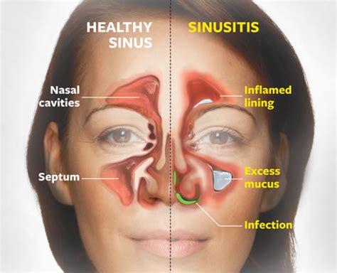 sinus ear infection bronchitis prescription picture 5