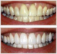 fairfield teeth whitening picture 3