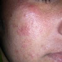 polymorphic skin lesions from uv exposure picture 7