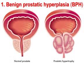 symptoms of benign prostatic hypertrophy picture 7
