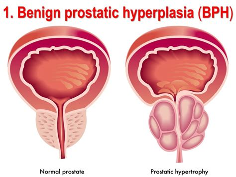 definition of benign prostatic hyperplasia picture 10