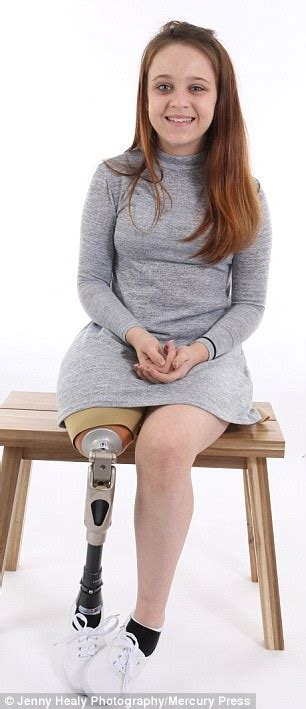 amputee legs women on prosthetic legs picture 5