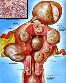 narambu thalarchi cure seivathu picture 13
