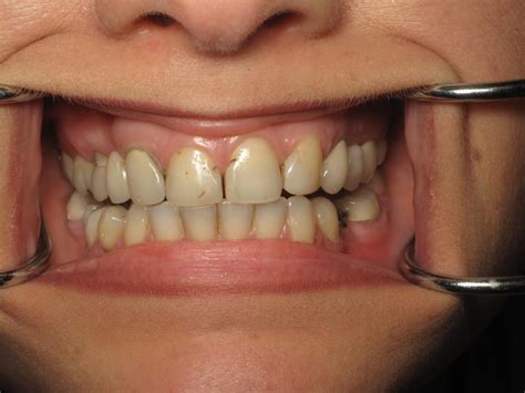 los angeles tooth crown picture 5