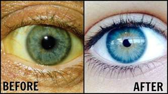 how to whiten the eyes picture 1