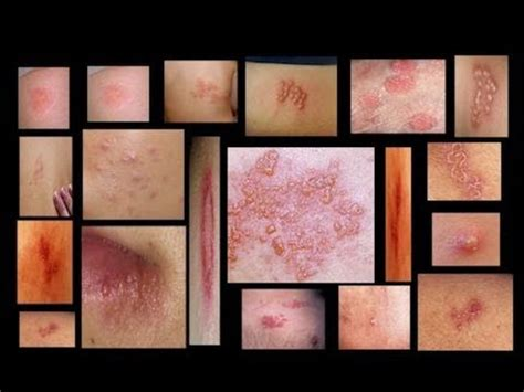 early stage pictures of herpes in women picture 7