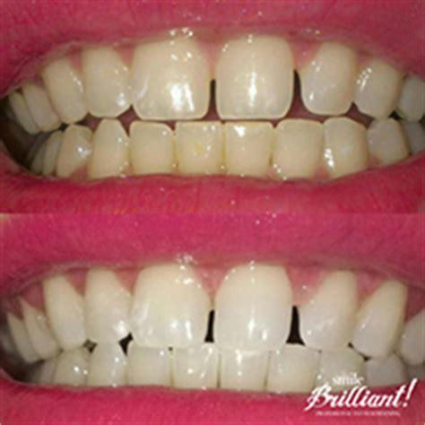 clarksville teeth whitening picture 1