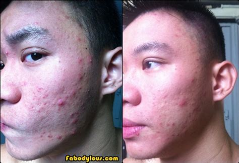 clearing up acne picture 1