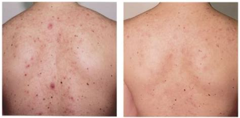 back acne treatment picture 1