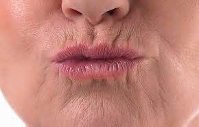 upper lip creases picture 11