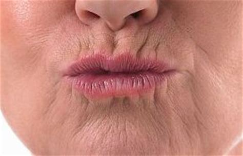 upper lip creases picture 1