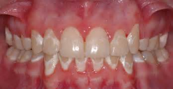 can weak spots in teeth be fixed picture 11