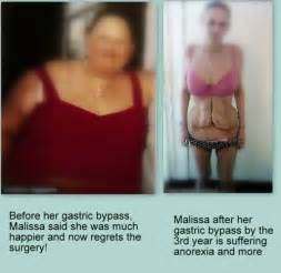 average weight loss after tummy tuck picture 5