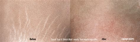 stretch marks removal scars picture 6