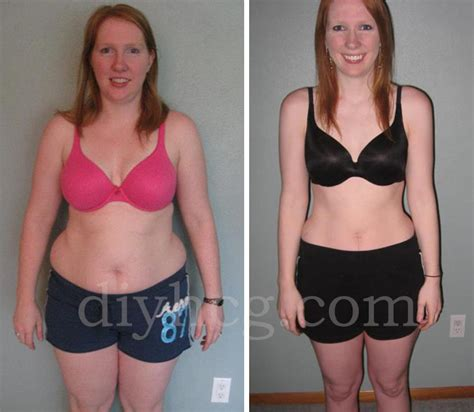hcg shots weight loss picture 3