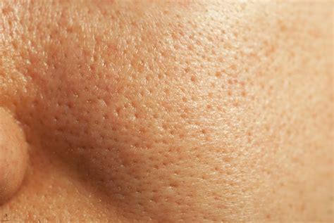 skin pores picture 5