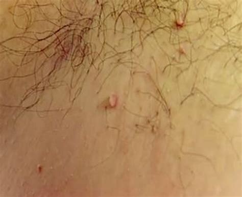 skin tag pictures picture 10